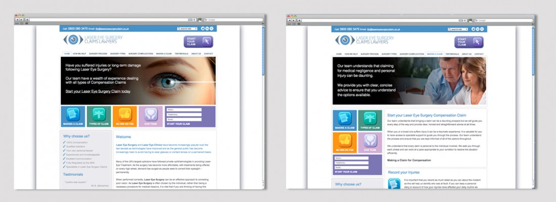 Laser Eye Surgery Claims Lawyers| Web Design and Development